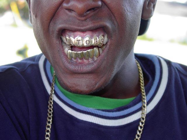 Гангстерские украшения для зубов.