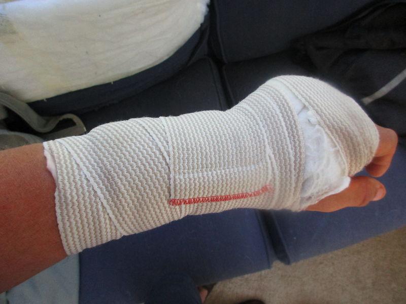 Broken Hand Splint Ideas 3d Printing Help Pelican Parts