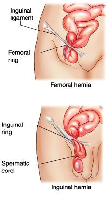 hernia femoralis symptomen